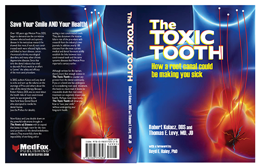 Toxic Tooth; How a Root Canal Can Be Making You Sick, book cover