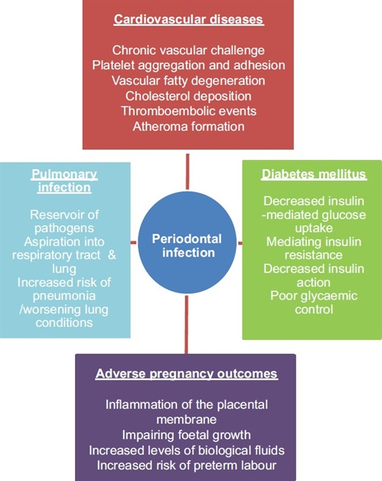 Periodontal Disease and Pancreatic Cancer